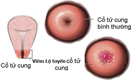 Dấu hiệu bệnh viêm lộ tuyến