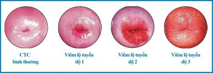 Bệnh viêm lộ tuyến cổ tử cung là gì?
